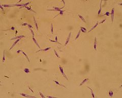 Leishmania major promastigotes.jpg