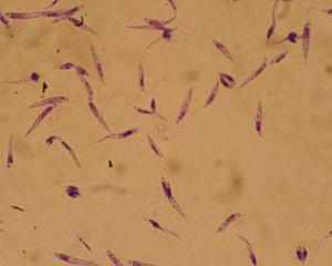 Leishmania major - Promastigotes of Leishmania major, 10×100, Giemsa stain.