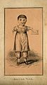 Master Vine, a child with deformed arms. Etching. Wellcome V0007290.jpg