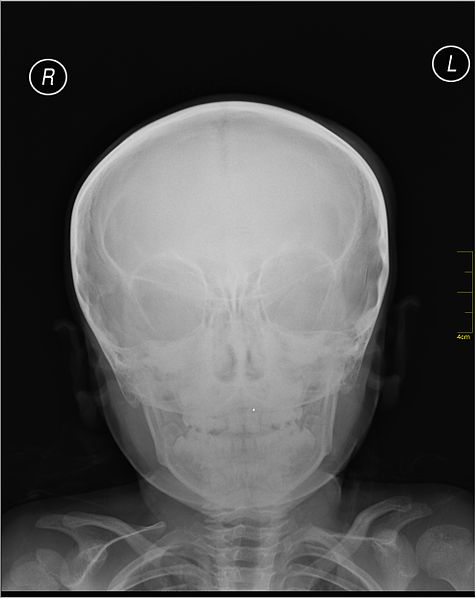 File:Medical X-Ray imaging IOG05 nevit.jpg