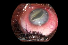 File:Ocular-Pentastomiasis-in-the-Democratic-Republic-of-the-Congo-pntd.0003041.s001.ogv