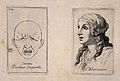 Outline of a face in extreme pain (left); a woman's head, sh Wellcome V0009377.jpg