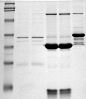 Polyacrylamide gel electrophoresis - Picture of an SDS-PAGE. The molecular markers (ladder) are in the left lane