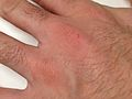 Scabies Nodules hand.JPG