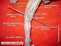 Common Fibular Nerve Wikivisually