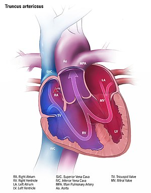 picture about Vsd 190 Printable known as Continual truncus arteriosus - Wikipedia