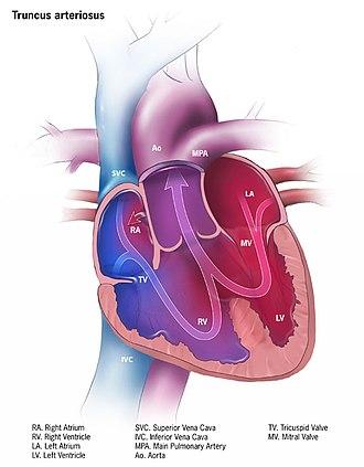 Truncus arteriosus - Image: Truncus arteriosus