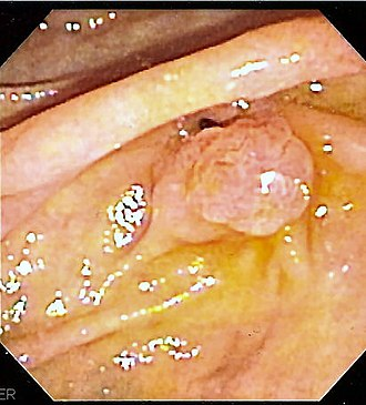 Ampulla of Vater - The major duodenal papilla, seen on duodenoscopy at the time of ERCP. This is the protrusion of the ampulla of Vater into the duodenum.