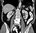 Angiomyolipome TubSklerose cor3.jpg
