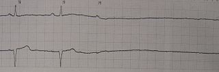 Asystole absence of ventricular contractions lasting longer than the minimum possible to sustain life