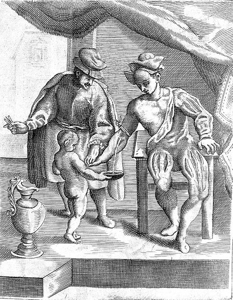 17th Century Woodcut of Bloodletting