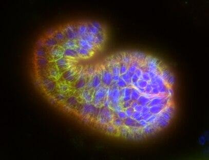 File:CE-embryo.tif