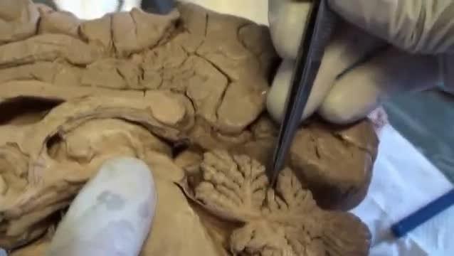 Filecerebellum Dissection Video 2 Sagittal Sanjoy Sanyalwebm