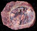 Circumvallate placenta (533599728).jpg