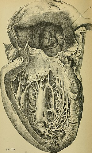 Diseases of the heart and thoracic aorta (1884) (14598261908).jpg