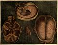 Dissections of the brain and blood vessels; three figures. C Wellcome V0007907.jpg