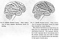 Distribution of middle cerebral artery Wellcome L0001981.jpg