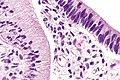 Endocervical adenocarcinoma in situ --- very high mag.jpg
