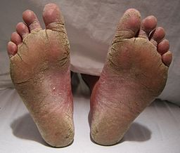 How to Cure Athlete S Foot
