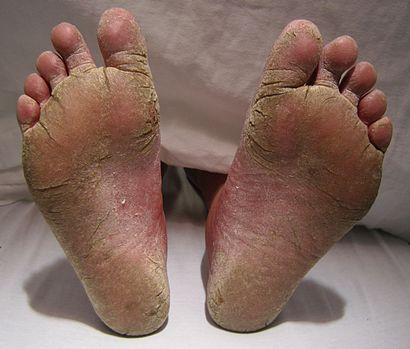 FeetFungal.JPG