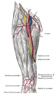 Medial inferior genicular artery