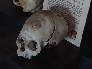 Guane people - Deformed Guane skull