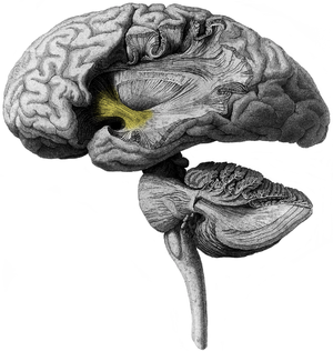 Uncinate fasciculus - Human brain that operculum has been removed. A part of uncinate fasciculus is visible (shown in yellow)