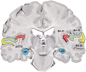 Auditory cortex - Coronal section of a human brain. BA41(red) and BA42(green) are primary auditory cortex. BA22(yellow) is Brodmann area 22, HF(blue) is hippocampal formation and pSTG is posterior part of superior temporal gyrus.