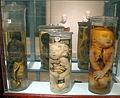 Istituto di anatomia patologica, museo, campioni 15 feti malformati.JPG