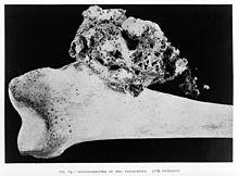 Osteosarkom Wikipedia