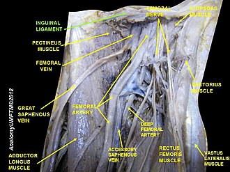 Inguinal ligament - Image: Slide 12LLLL