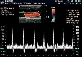 The Lowdown on Extremity Studies - radiologytoday.net