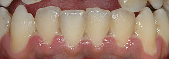 Mild presentation of ANUG on the gums of the lower front teeth Ulcerative necrotizing gingivitis.jpg