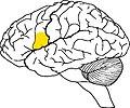 Зона поражения головного мозга при синтаксической афазии.jpg