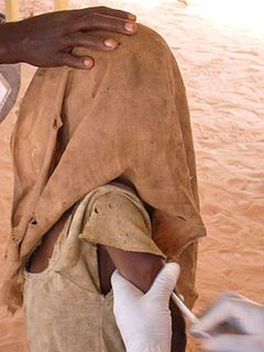 Child being vaccinated in Chad