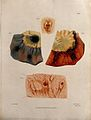 Four sections of diseased intestine. Coloured mezzotint by W Wellcome V0009762ER.jpg