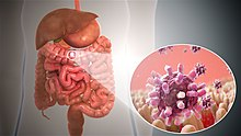 rotavirus gastroenteritis dehydration