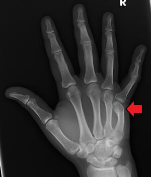 Share broken thumb heal