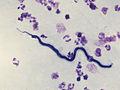 Loa loa - microfilaria.jpg