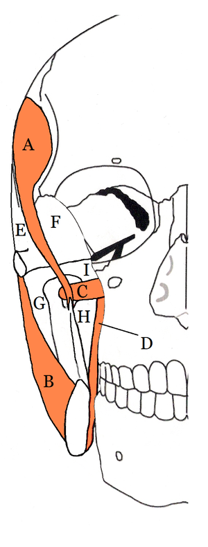 Submasseteric space - The four compartents of the right masticator space. A Temporalis muscle, B Masseter muscle, C Lateral pterygoid muscle, D Medial ptaerygoid muscle, E Superficial temporal space, F Deep temporal space, G Submasseteric space, H Pterygomandibular space, I Approximate location of infratemporal space