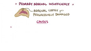 File:Primary adrenal insufficiency.webm