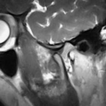 File:Real-time MRI - Temporomandibular Joint.ogv
