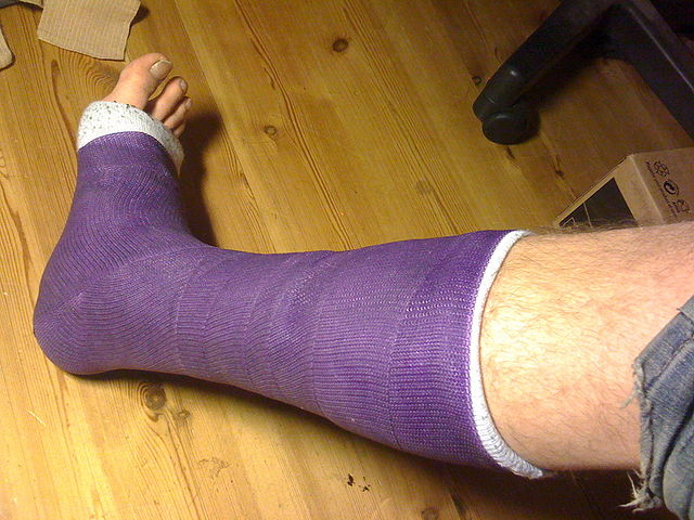 Shorter leg cast By Enareksi (Own work) [CC BY-SA 3.0 (https://creativecommons.org/licenses/by-sa/3.0) or GFDL (https://www.gnu.org/copyleft/fdl.html)], via Wikimedia Commons