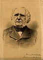 Sir William James Erasmus Wilson. Lithograph. Wellcome V0006312.jpg