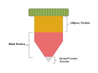 Stromal vascular fraction - Stromal Vascular Fraction