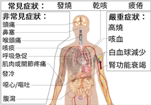 Symptoms of coronavirus disease 2019 2.0 in Traditional Chinese.png