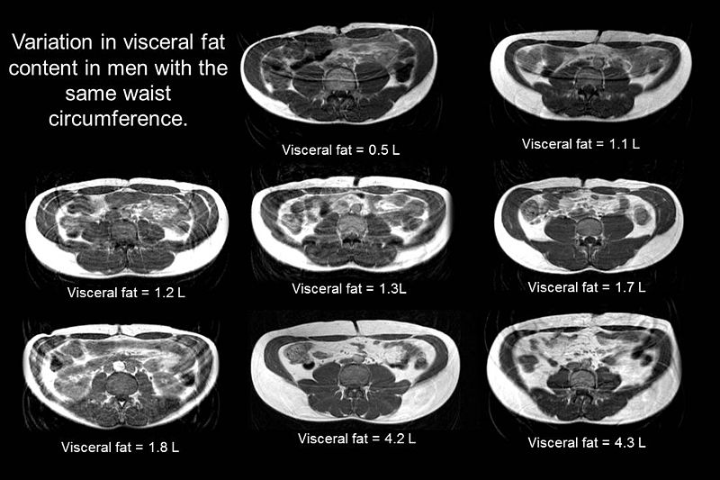File:Variation in visceral fat in men with the same waist circumference.jpg