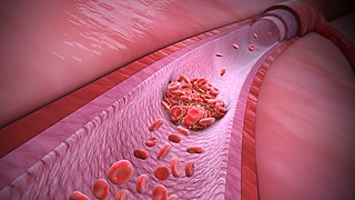 Thrombophilia abnormality of blood coagulation that increases the risk of thrombosis (blood clots in blood vessels)