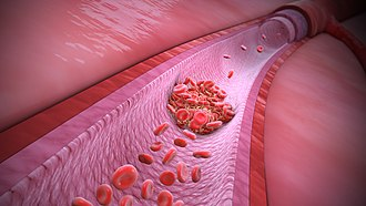 3D Medical animation still explaining the Thrombophilia 3D Medical Animation Thrombophilia.jpg