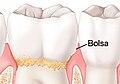 Bolsa - tooth.jpg